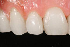Alargamiento de corona dental en Vecindario, Canarias