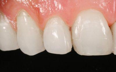 ¿Qué es el alargamiento de corona dental?
