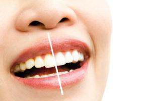 Causas de los dientes amarillos