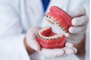 corregir los dientes montados