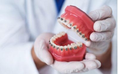 Cómo corregir los dientes montados