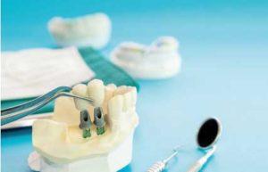 ¿Rechazo o fallo de implantes?
