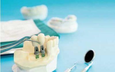 Fallo o rechazo de implantes dentales
