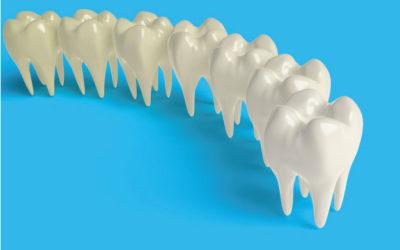 Hipoplasia dental: que es, síntomas, tratamiento y más