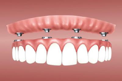 ¿En qué consisten las sobredentaduras sobre implantes?